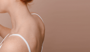 Pai Skincare - what causes back acne and how to get rid of it