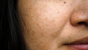 Melasma, sometimes known as Chloasma or Pregnancy Mask